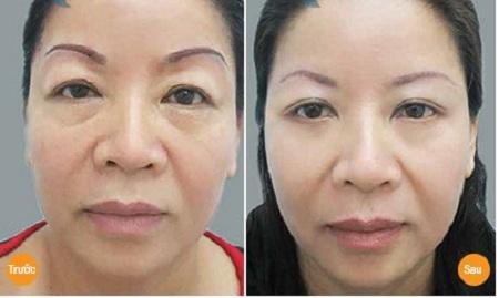 Hiệu quả cắt mí mắt dưới của chị Minh Hà