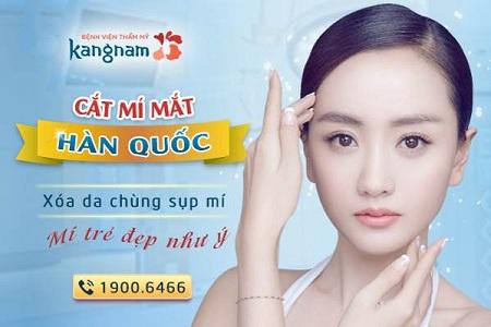 Kết quả cắt mí mắt dưới tại BVTM Kangnam