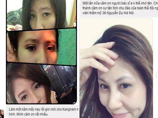 Review của khách hàng về cắt mí mắt trên tại Kangnam