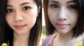 Lấy mỡ mí mắt trên: Xem [VIDEO LIVESTREAM] quy trình và hiệu quả