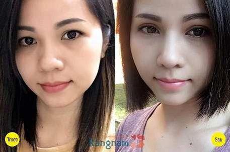 Kết quả trước sau lấy mỡ mí mắt trên tại Kangnam