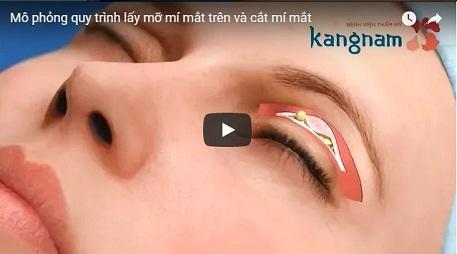 Mô phỏng quá trình lấy mỡ mí mắt trên