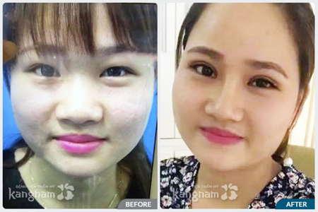 Kết quả trước sau cắt mí mắt trên tại Kangnam