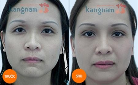 Kết quả cắt mí mắt dưới của chị Hải Vân