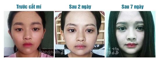 Kết quả sau cắt mí mắt trên 1 tuần tại Kangnam