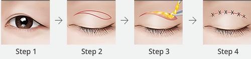 Quy trình cắt mí mắt trên tại Kangnam