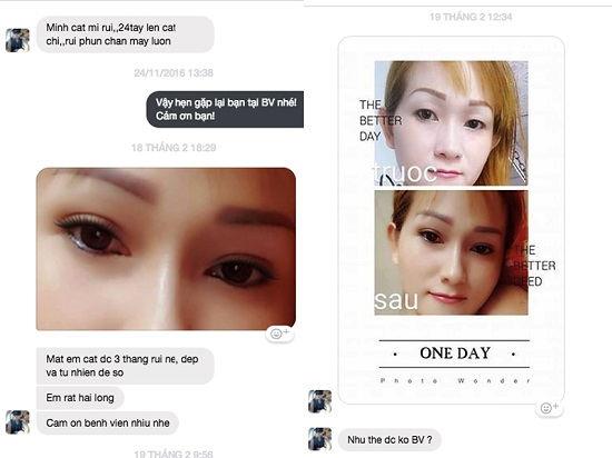 Hiệu quả cắt mí mắt trên tại Kangnam qua chia sẻ khách hàng