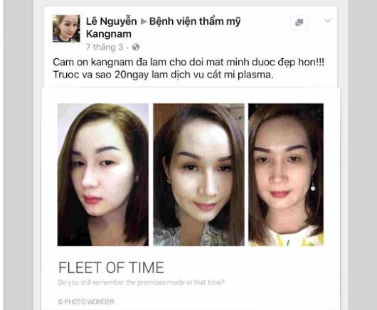 Kết quả cắt mí mắt trên thực tế tại Kangnam