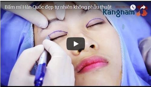 Quy trình làm mắt 1 mí thành 2 mí tại Kangnam