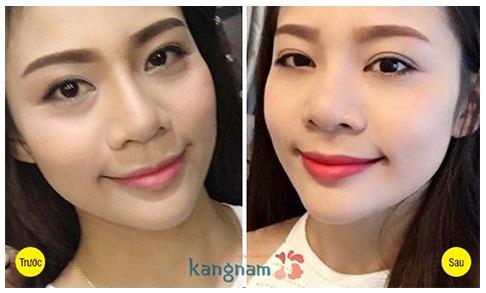 Một số hình ảnh khách hàng sau khi cắt mí 15 ngày tại Bệnh viện thẩm mỹ Kangnam1