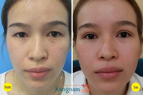 Một số hình ảnh khách hàng sau khi cắt mí 15 ngày tại Bệnh viện thẩm mỹ Kangnam3