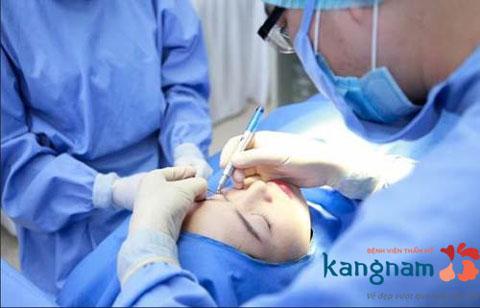 Phẫu thuật cắt mắt 2 mí có để lại sẹo không?