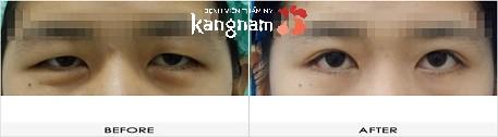 phẫu thuật cắt khóe mắt 6
