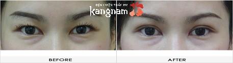 phẫu thuật cắt khóe mắt 5