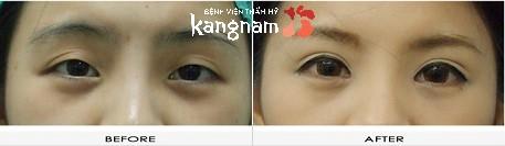 phẫu thuật cắt khóe mắt 7