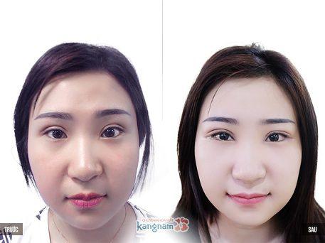phẫu thuật cắt khóe mắt 1