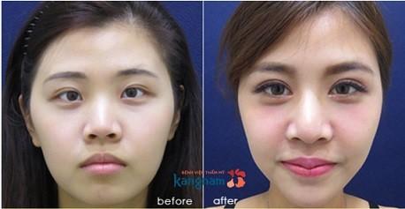 phẫu thuật cắt khóe mắt 4