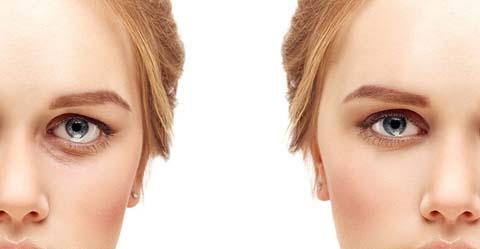 cấy mỡ trẻ hóa mắt 1