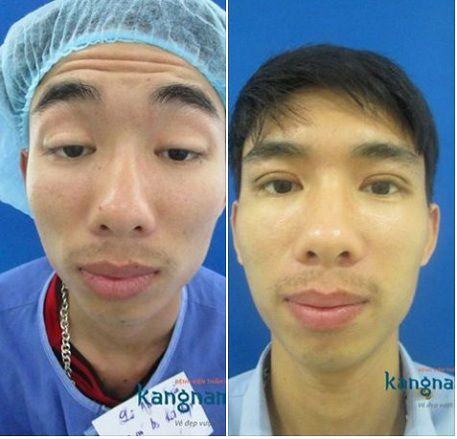 chữa sụp mí mắt bẩm sinh-4