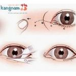"""Phẫu thuật cắt khóe mắt trong/ngoài tại Kangnam tạo mắt """"nai"""" to, đẹp"""