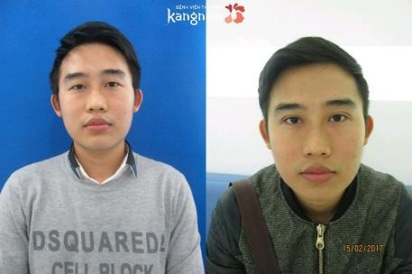 Cách chữa sụp mí mắt tại Kangnam