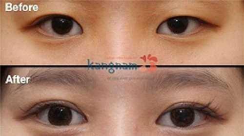 cách trị mắt to mắt nhỏ tại nhà