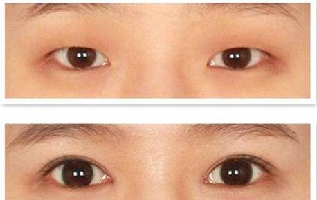 Có nên phẫu thuật mắt một mí không3