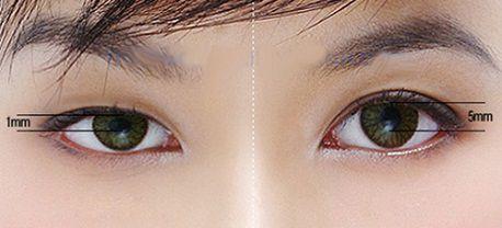 Có nên phẫu thuật mắt to mắt nhỏ không1