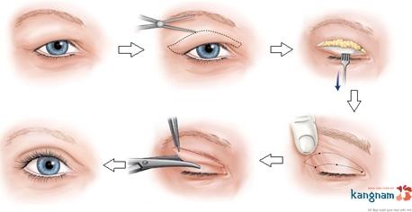cách chữa sụp mí mắt 1