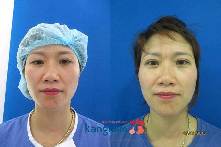 Phẫu thuật cắt mí mắt có hại không?5555