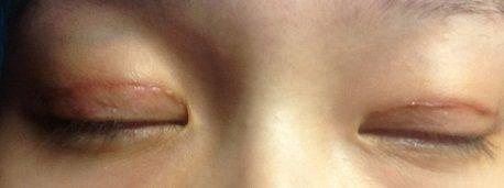 Bác sĩ nào cắt mắt đẹp