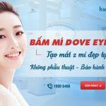 Bấm mí mắt Hàn Quốc Dove Eyes – Mắt to tròn – Đẹp trọn đời