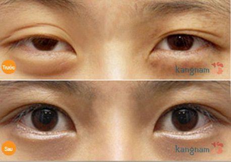Chữa sụp mí mắt có nguy hiểm không4