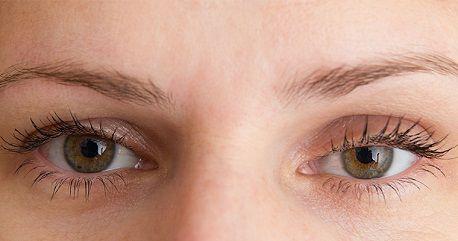 Chữa sụp mí mắt có nguy hiểm không1