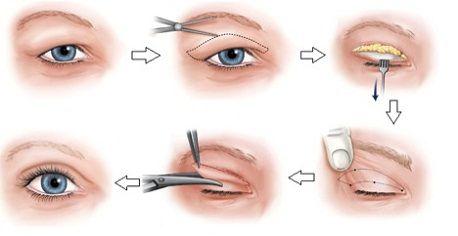 Chữa sụp mí mắt có nguy hiểm không2