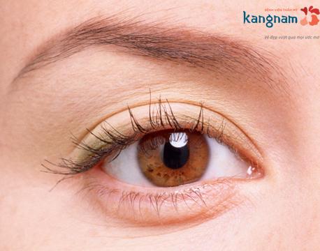 lấy mỡ mí mắt không phẫu thuật 3