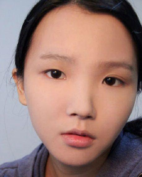 Mắt bị lệch mí và phương pháp lấy lại đôi mắt cân bằng tự nhiên1