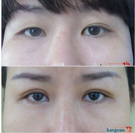 Mắt bị lệch mí và phương pháp lấy lại đôi mắt cân bằng tự nhiên7
