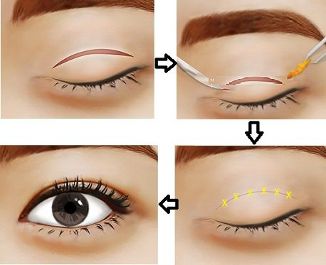 Mắt bị lệch mí và phương pháp lấy lại đôi mắt cân bằng tự nhiên2