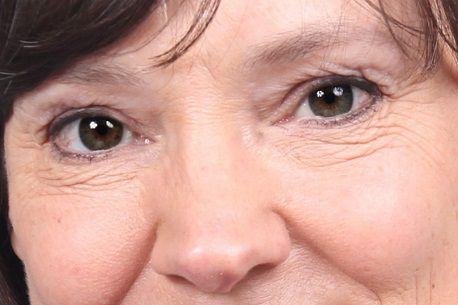 Mắt có nhiều da chùng phải làm sao để khắc phục hoàn toàn1