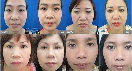 Mắt có nhiều da chùng phải làm sao để khắc phục hoàn toàn6