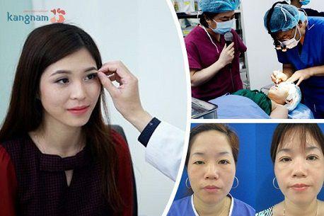 Mắt có nhiều da chùng phải làm sao để khắc phục hoàn toàn3
