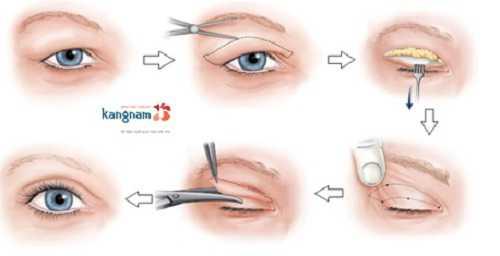 cách khắc phục mắt to mắt nhỏ