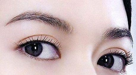 Mở rộng góc mắt có để lại sẹo không1