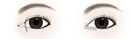 Mở rộng góc mắt có để lại sẹo không2