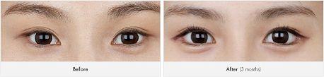 Mở rộng góc mắt có để lại sẹo không5