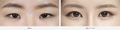 Mở rộng góc mắt có để lại sẹo không3