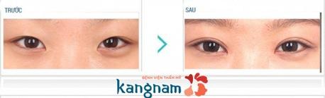phẫu thuật mắt to giá bao nhiêu tiền