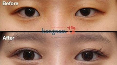 phẫu thuật mắt to bao nhiêu tiền 9