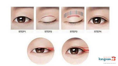 phẫu thuật thẩm mỹ mắt 4